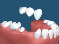 ブリッジとは両端の歯も被せ橋のようにしてがあるように見せること