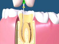 歯の根の神経を取る
