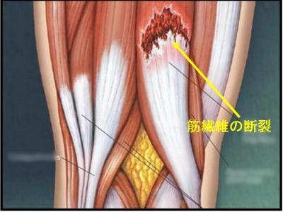 肉離れ - Strain (injury) - JapaneseClass.jp
