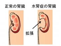 子どもの水腎症の症状・原因・治療法