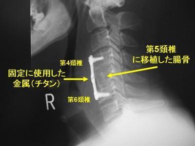 前方固定術の術後単純X線像 前方固定術の術後単純X線像。 Aさんの場合、第5椎体、椎間板を切除し