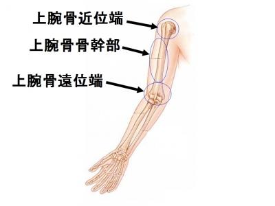上腕骨 上腕骨の一部で肘関節を構成している部分が上腕骨遠位端です。 転落、転倒... 上腕骨遠位