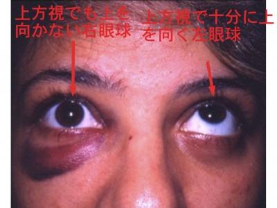 複視 眼窩骨折・吹き抜け骨折の症状・診断・治療 [骨・筋肉・関節の病気] All About &