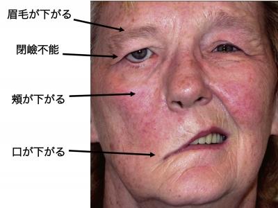 顔面神経麻痺