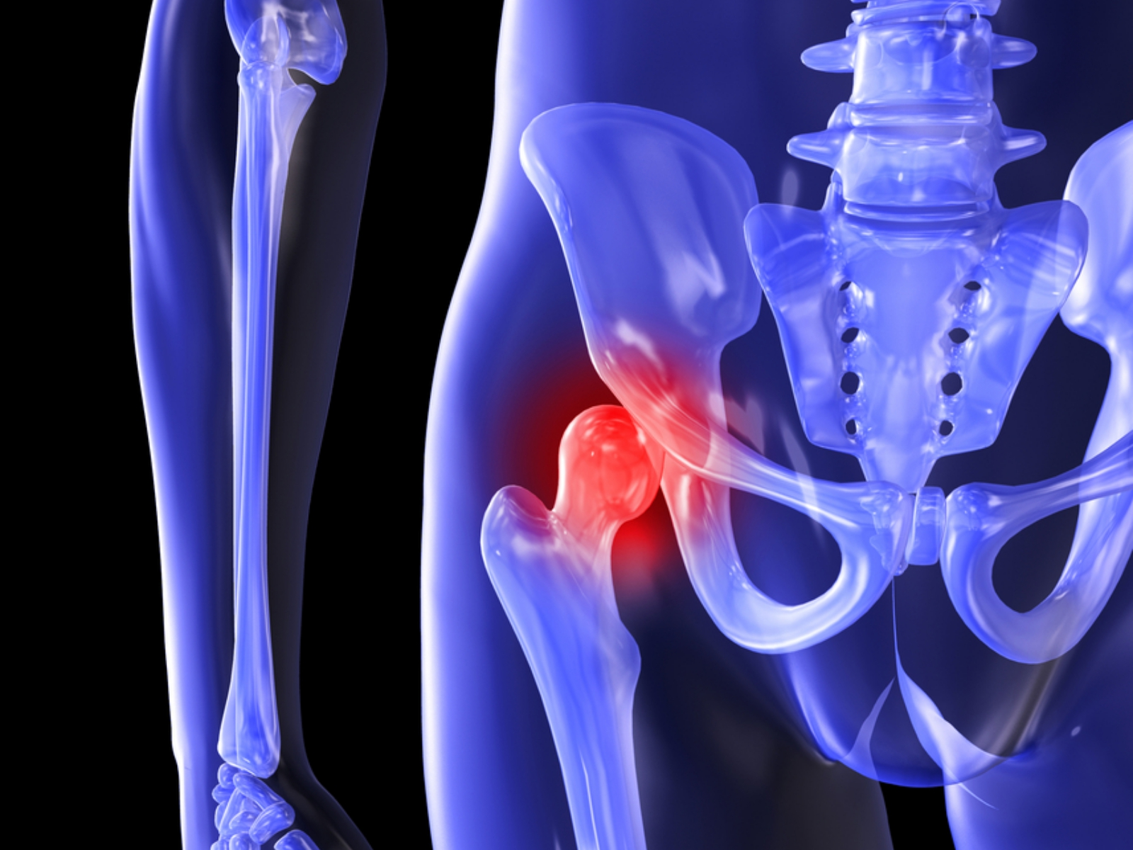 大腿骨頭壊死症の症状・診断・治療 [骨・筋肉・関節の病気] All About