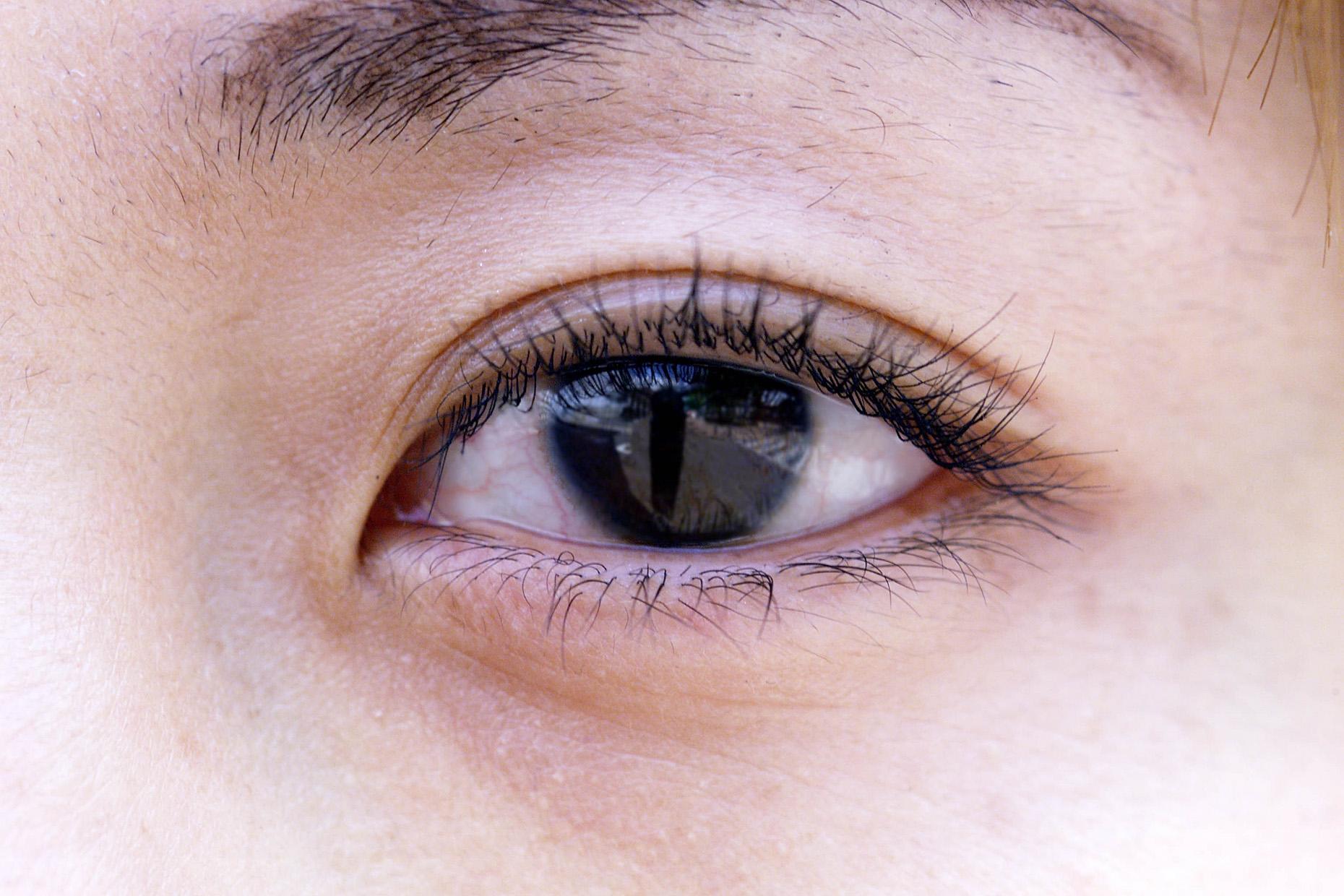 画像 : 緑内障の原因・症状・治療法まとめ - NAVER まとめ